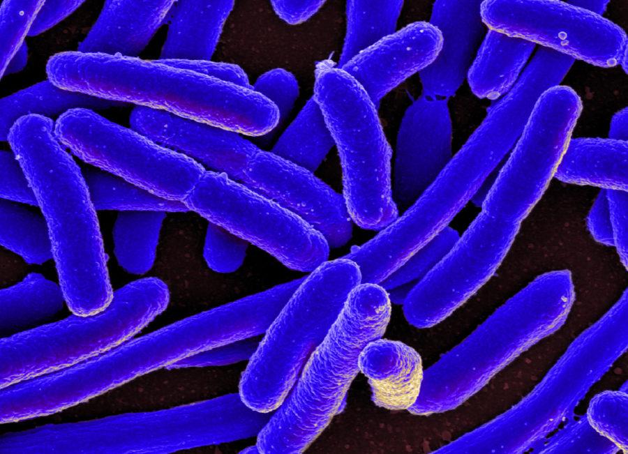 Scanning+electron+micrograph+of+Escherichia+coli
